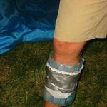 my_buggered_leg